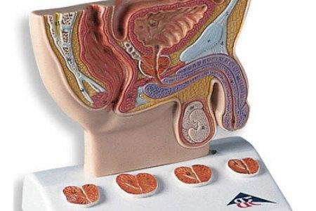 klinicheskie-proyavleniya-prostatita