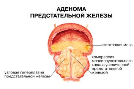 priznaki-vospaleniya-prostati-u-muzhchin-lechenie