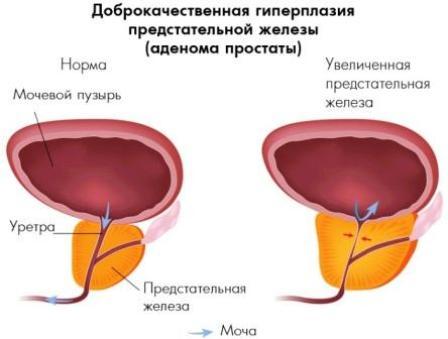 инфограма доброкачественной опухоли мужской железы