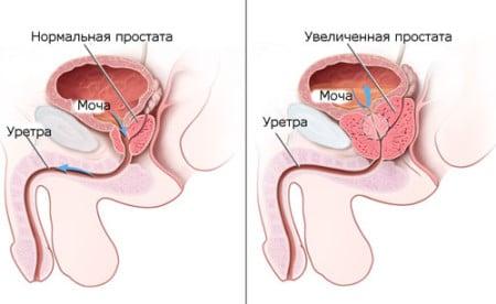 инфограма нормальной и увеличенной мужской железы