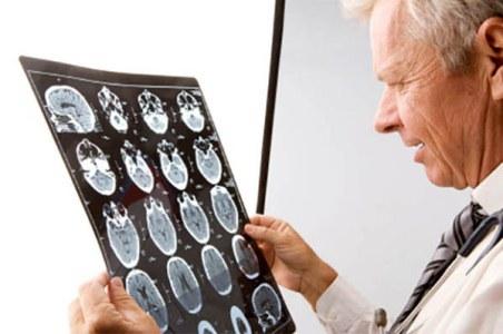 врач рассматривает снимок головного мозга