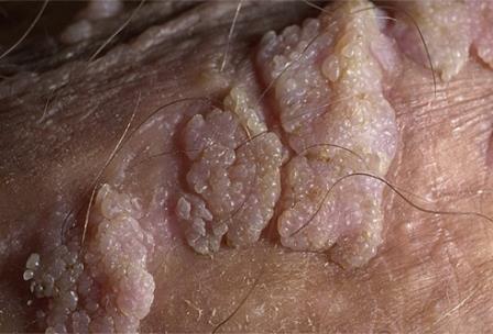 бородавки на коже