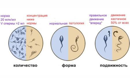 инстаграма нормы сперматозоидов