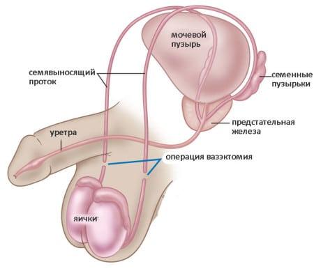 инстраграма мочеполовой системы мужчины