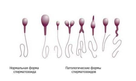 инстраграма мужских половых клеток