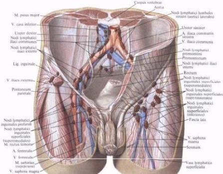 инстраграмма паховыхи подвздошных лимфоузлов