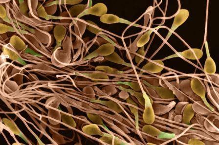 эякулят под микроскопом