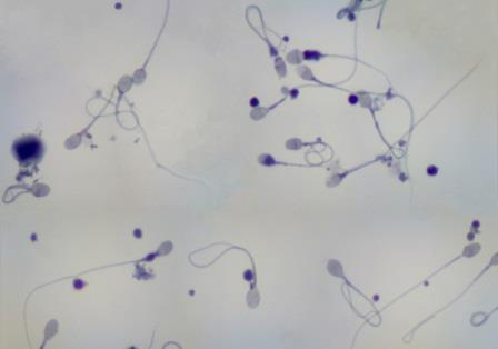 вид эякулята под микроскопом