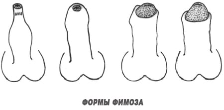 формы фимоза препуций