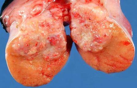 фото эмбрионалной опухоли