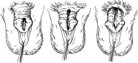 инфограма форм расщелины передней стенки уретры
