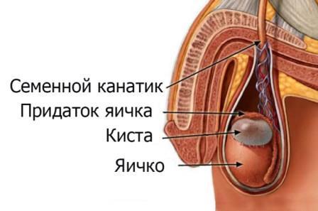 инфограма патологии тестикул