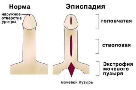 инфограма расщелины передней стенки уретры
