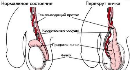 инфограма травмы