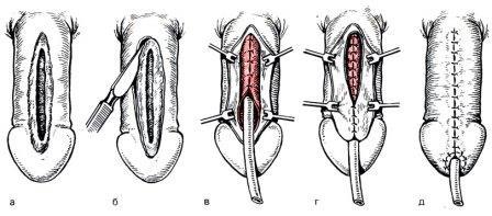 инфограма ушивания расщелины передней стенки уретры