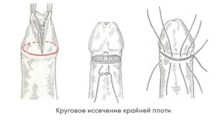 инстаграма обрезания