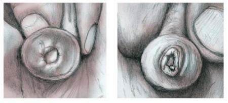 изображение фимоза