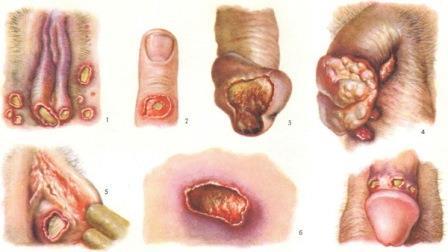 поражение при инфицировании Haemophilus ducreyi