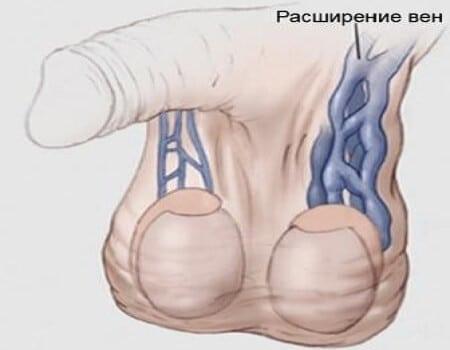 инфограма варикоцеле