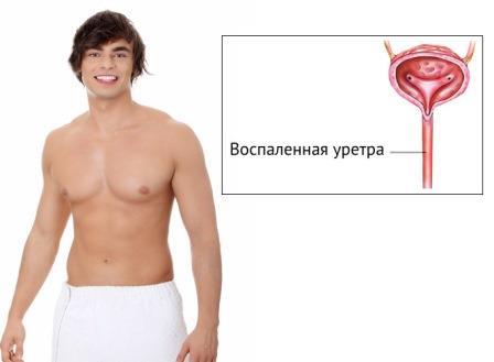 парень и инстаграма воспаления уретры