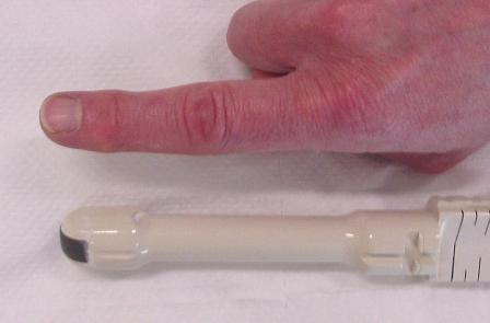 датчик для трансректального ультразвукового исследования