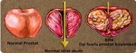 инфограма больной и здоровой мужской железы