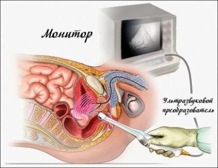 инфограма трансректального ультразвукового исследования
