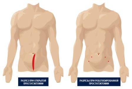 методы проведения удаления мужской железы