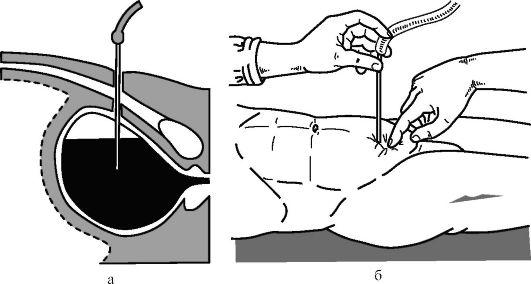 опорожнение мочевого пузыря через брюшную стенку