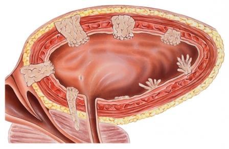 рисунок образований на внутренней слизистой мочевого пузыря