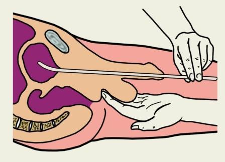 рисунок проведения принудительного опорожнения мочевого пузыря