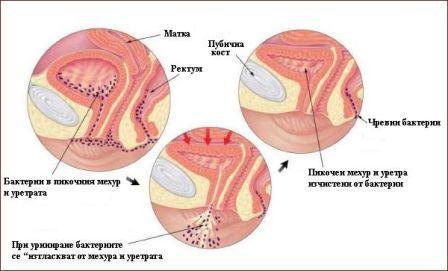 схема развития воспаления мочевого пузыря