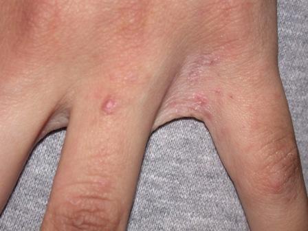 чесотка на кисти рук