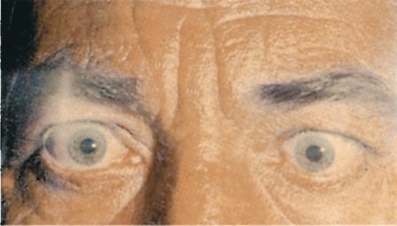 глаза у больного тиреотоксикозом