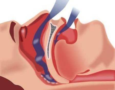 инфограма апноэ