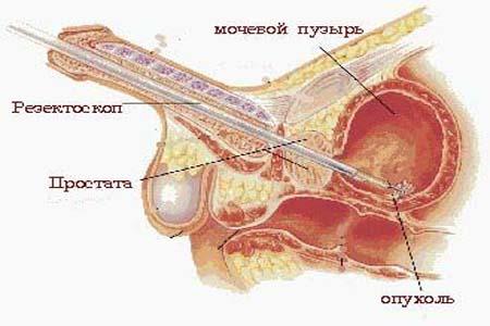 опухоль мочевого пузыря