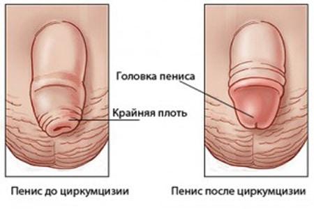 пенис до и после циркумцизии