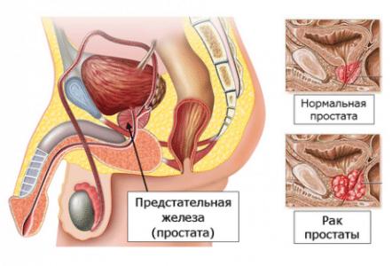 инфограмма предстательной железы
