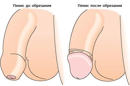 Обрезания