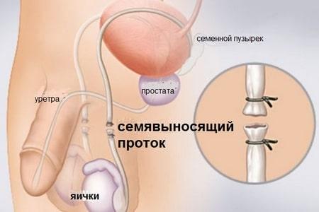стерилизация мужчин