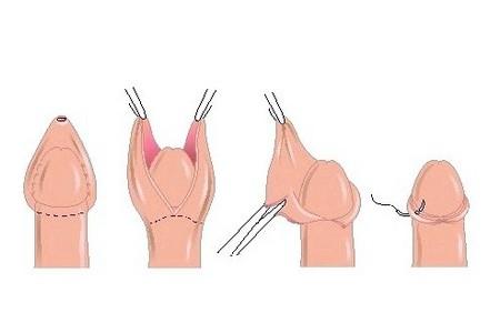 процесс обрезания
