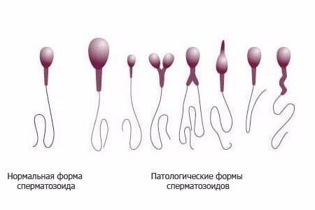 Нормальные и паталогические формы сперматозоидов