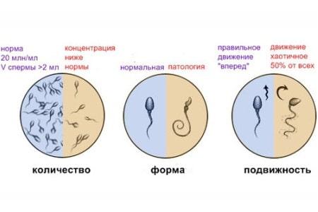 подвижность спермотозоидов