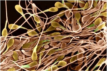спермотазоиды