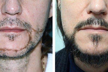 Мужчина до и после пересадки волос