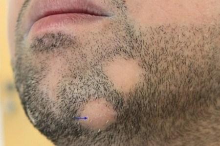 На щетине появилось пятно без волос