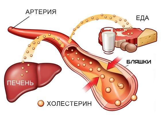 рисунок сосудов при наличии холестерина