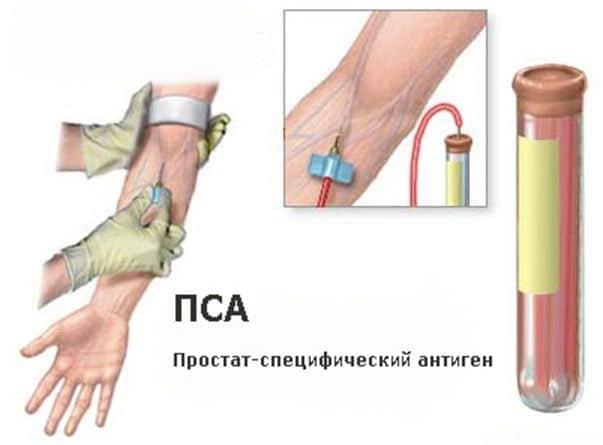 рисунок с изображением взятия анализа крови с вены