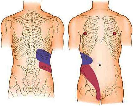 рисунок областей боли в почках на теле мужчины
