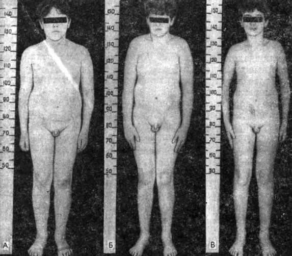 фото замедленного созревания половых органов